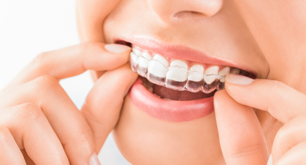 Treatment - Angus Pringle Orthodontics
