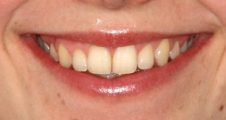 After - Angus Pringle Orthodontics