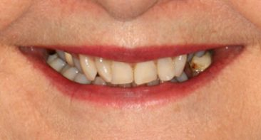 Before - Angus Pringle Orthodontics