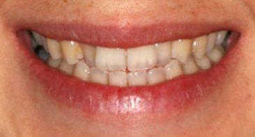 Before - Angus Pringle Orthodontics