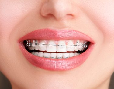 Gallery - Angus Pringle Orthodontics