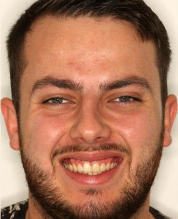 After - Angus Pringle Orthodontics
